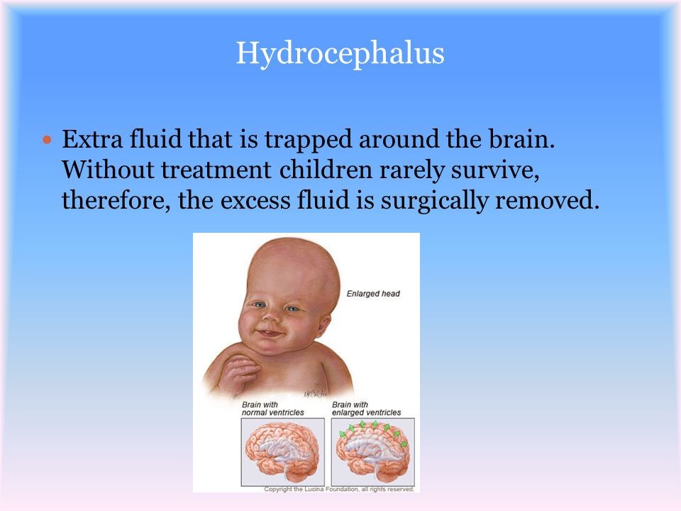 Hydrocephalus Extra fluid that is trapped around the brain. Without treatment children rarely survive, therefore, the excess fluid is surgically remov