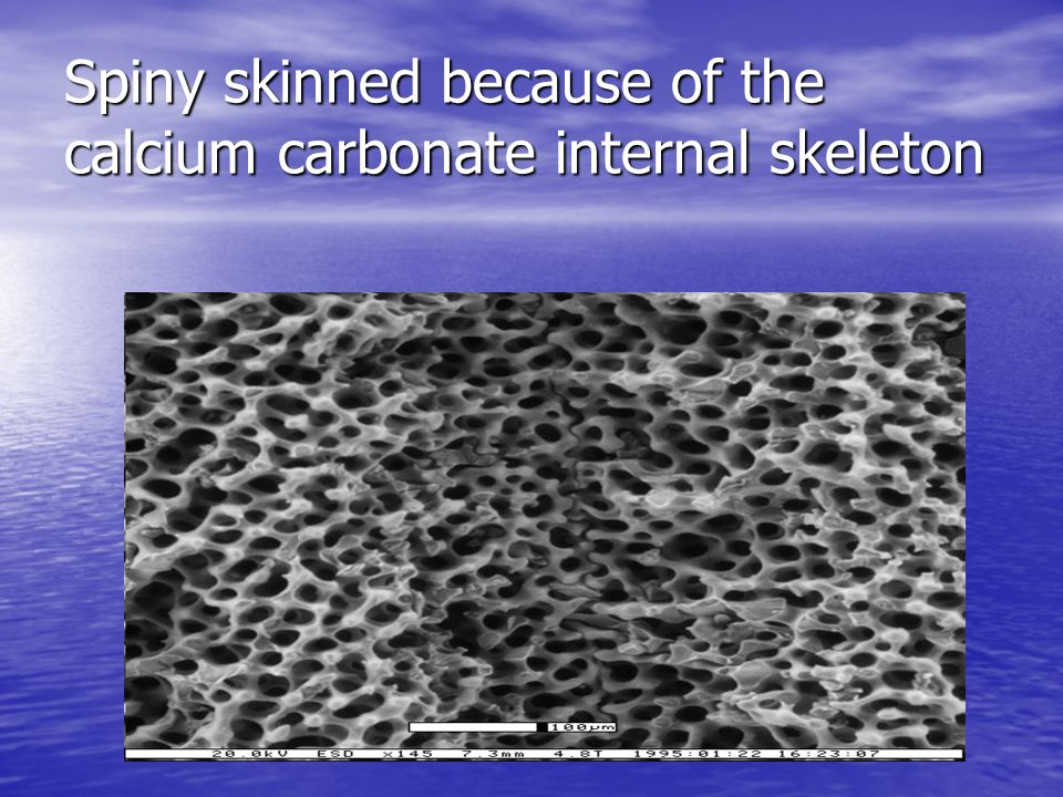 Spiny skinned because of the calcium carbonate internal skeleton
