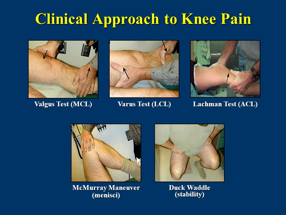 Clinical Approach to Knee Pain Varus Test (LCL) Valgus Test (MCL) McMurray Maneuver (menisci) Lachman Test (ACL) Duck Waddle (stability)