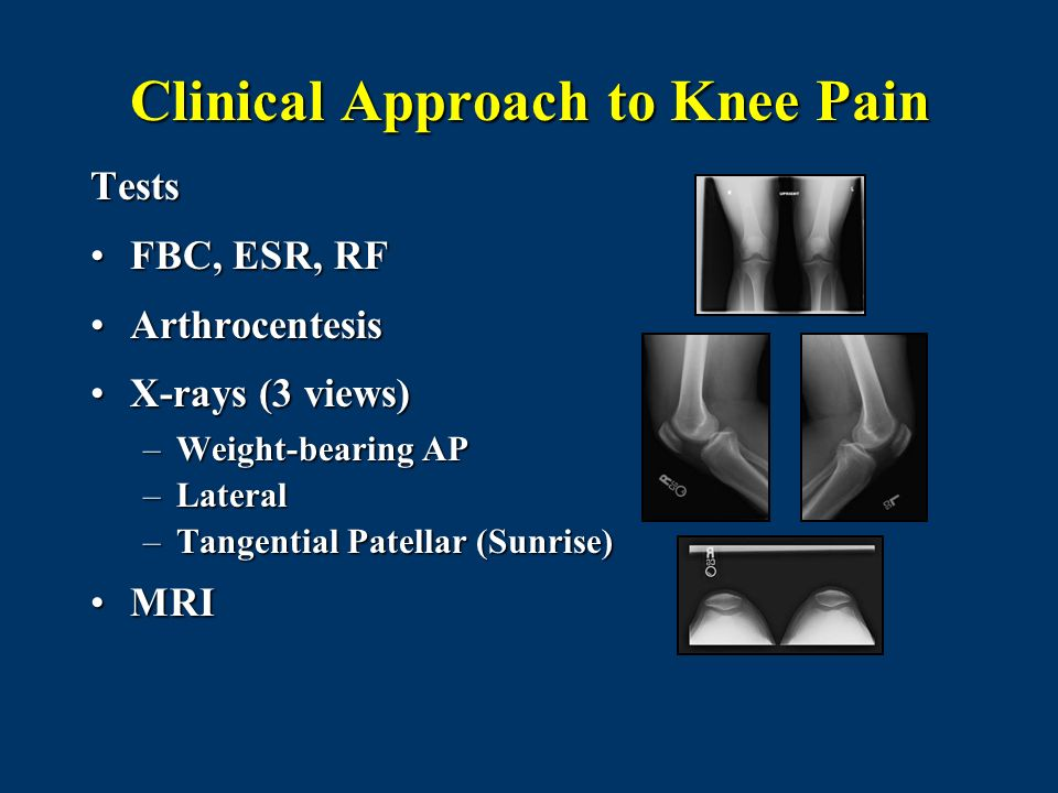 Clinical Approach to Knee Pain Tests FBC, ESR, RFFBC, ESR, RF ArthrocentesisArthrocentesis X-rays (3 views)X-rays (3 views) –Weight-bearing AP –Latera