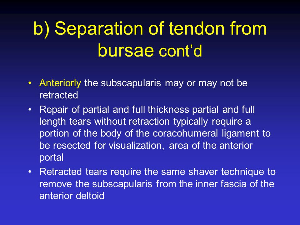 Anteriorly the subscapularis may or may not be retracted Repair of partial and full thickness partial and full length tears without retraction typical
