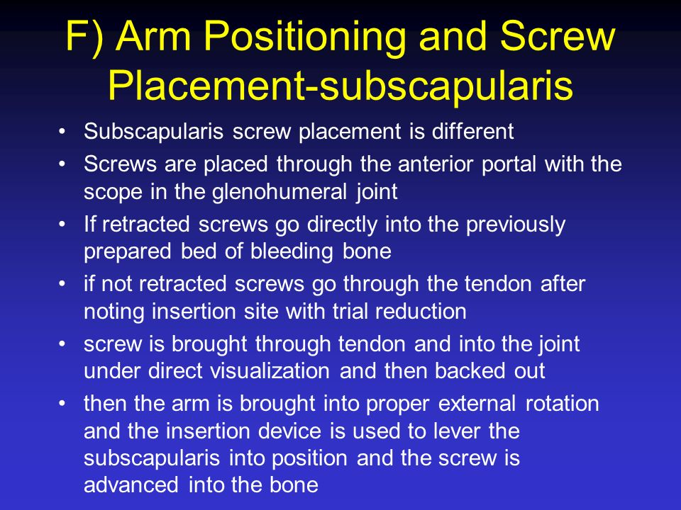 F) Arm Positioning and Screw Placement-subscapularis Subscapularis screw placement is different Screws are placed through the anterior portal with the