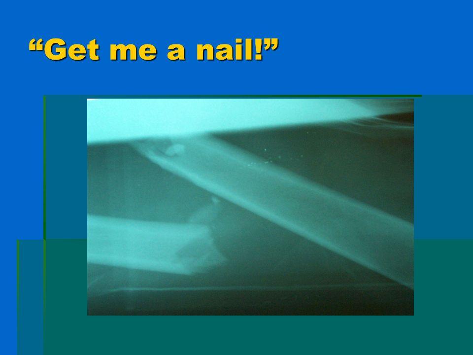 Get me a nail!