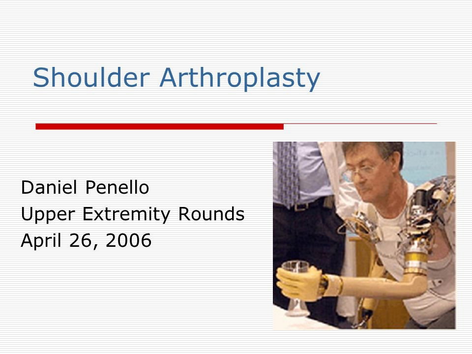 Shoulder Arthroplasty Daniel Penello Upper Extremity Rounds April 26, 2006