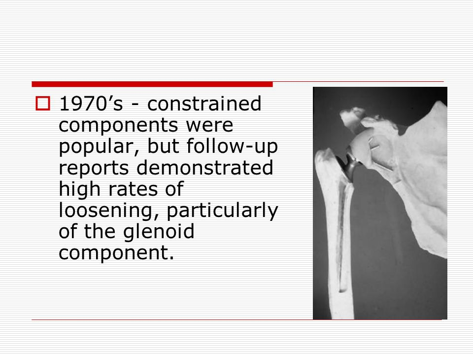 1970s - constrained components were popular, but follow-up reports demonstrated high rates of loosening, particularly of the glenoid component.