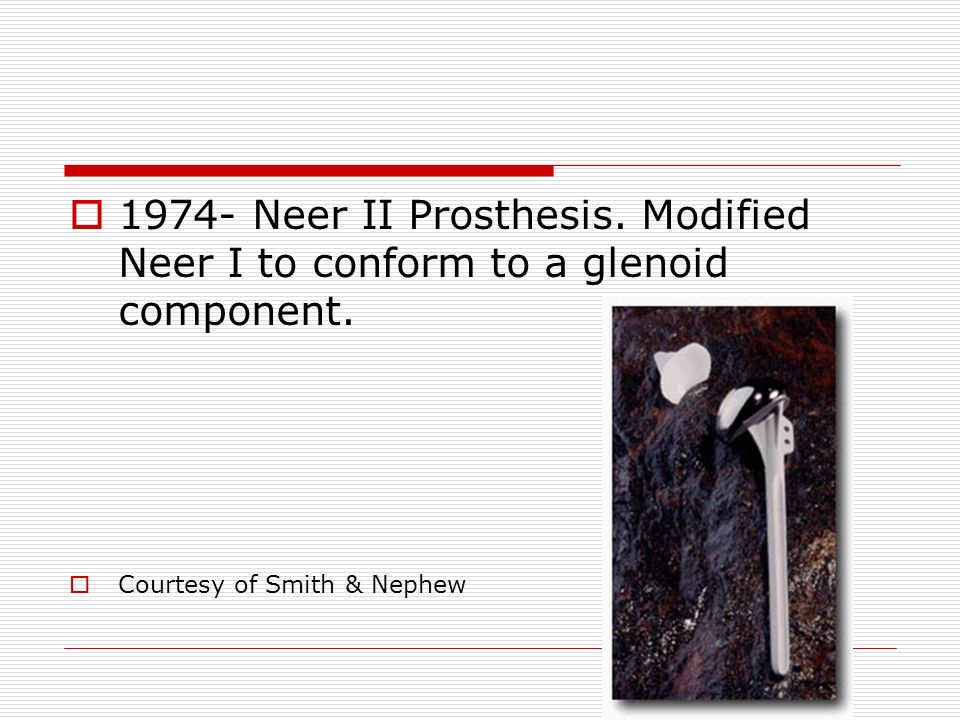 1974- Neer II Prosthesis. Modified Neer I to conform to a glenoid component. Courtesy of Smith & Nephew