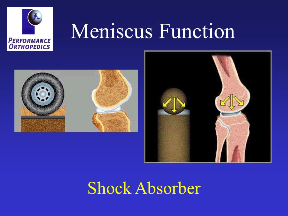 Meniscus Function Shock Absorber