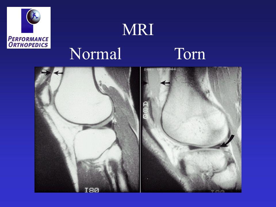 Normal Torn MRI