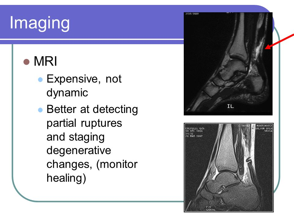 Imaging MRI Expensive, not dynamic Better at detecting partial ruptures and staging degenerative changes, (monitor healing)