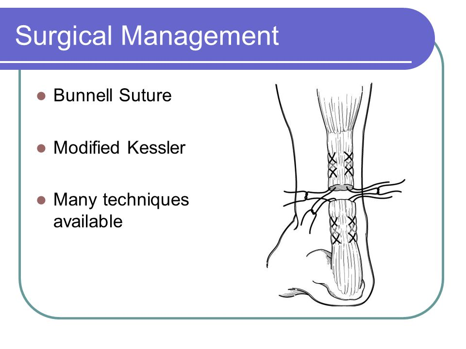 Surgical Management Bunnell Suture Modified Kessler Many techniques available