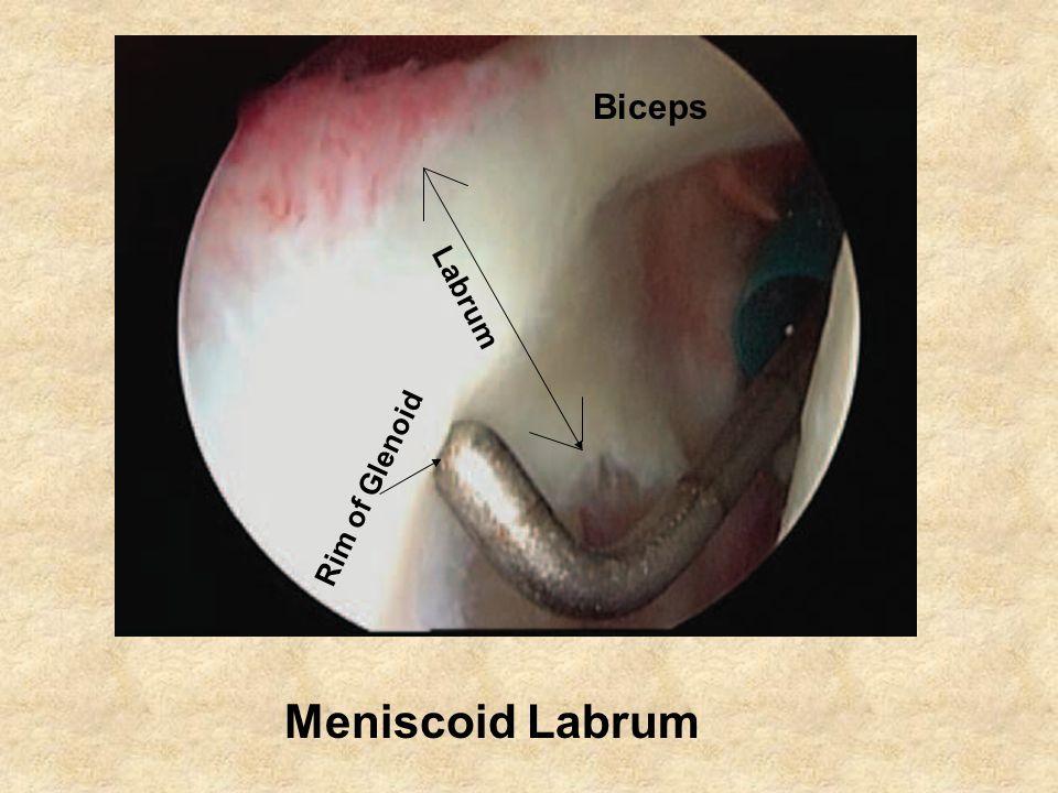 Meniscoid Labrum Biceps Labrum Rim of Glenoid