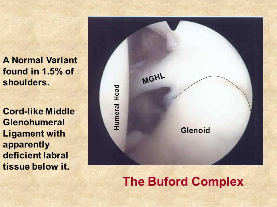 MGHL Humeral Head Glenoid The Buford Complex A Normal Variant found in 1.5% of shoulders.