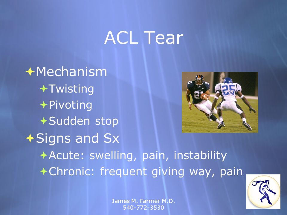 James M. Farmer M.D. 540-772-3530 ACL Tear Mechanism Twisting Pivoting Sudden stop Signs and Sx Acute: swelling, pain, instability Chronic: frequent g