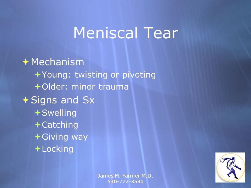 James M. Farmer M.D. 540-772-3530 Meniscal Tear Mechanism Young: twisting or pivoting Older: minor trauma Signs and Sx Swelling Catching Giving way Lo