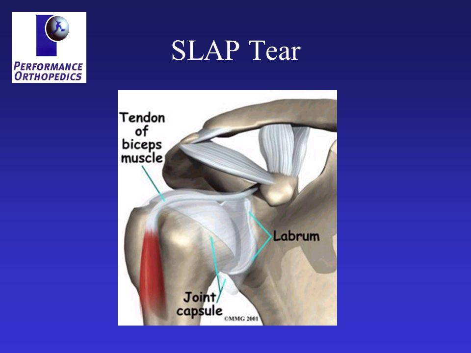 SLAP Tear