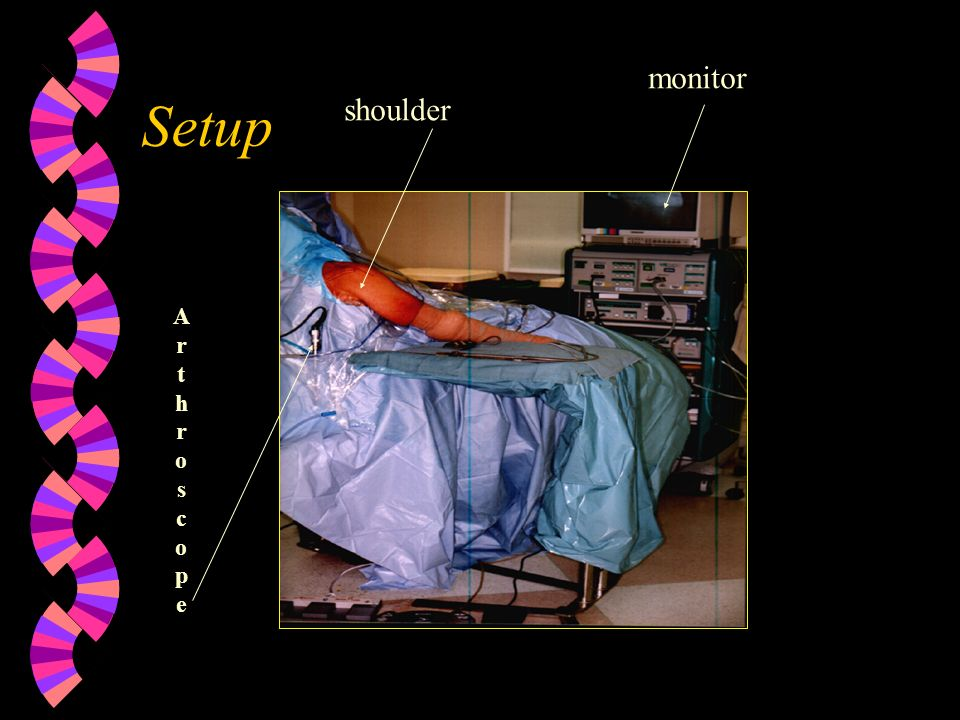 Setup monitor ArthroscopeArthroscope shoulder