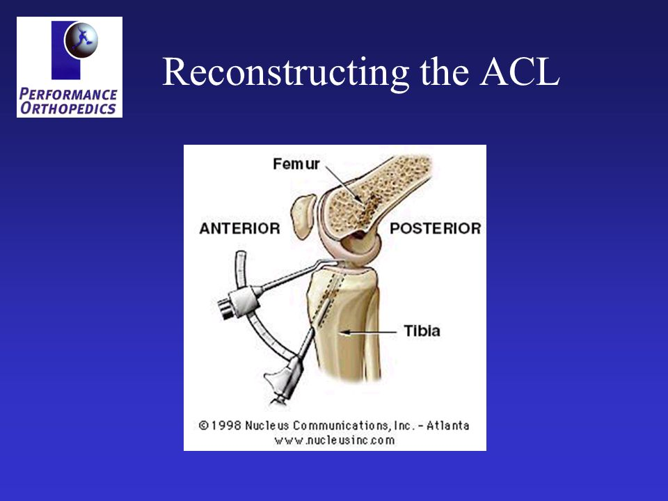 Reconstructing the ACL