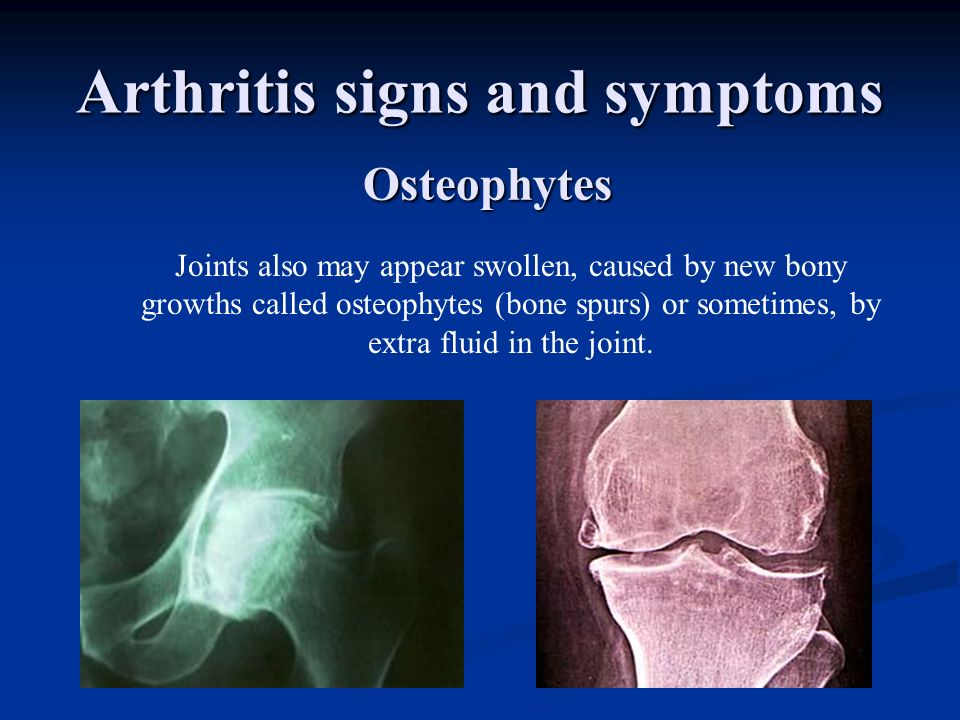 Arthritis signs and symptoms Joints also may appear swollen, caused by new bony growths called osteophytes (bone spurs) or sometimes, by extra fluid i