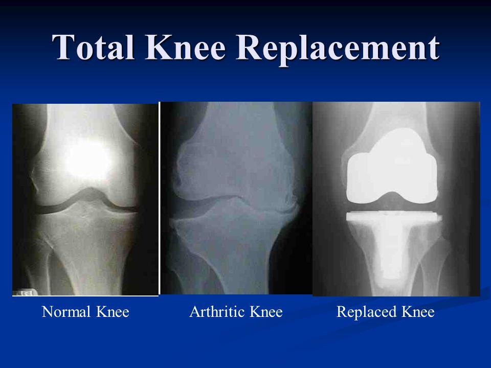 Total Knee Replacement Normal Knee Arthritic KneeReplaced Knee