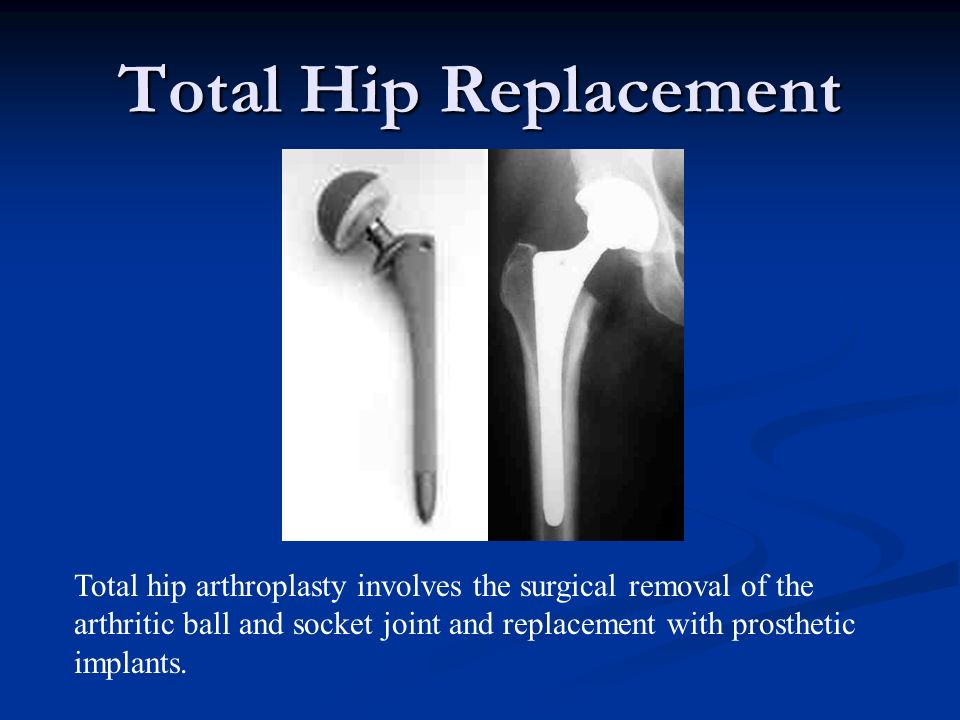 Total Hip Replacement Total hip arthroplasty involves the surgical removal of the arthritic ball and socket joint and replacement with prosthetic impl