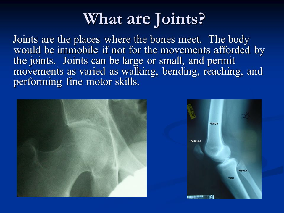 Hip joint The hip is a simple ball and socket joint.