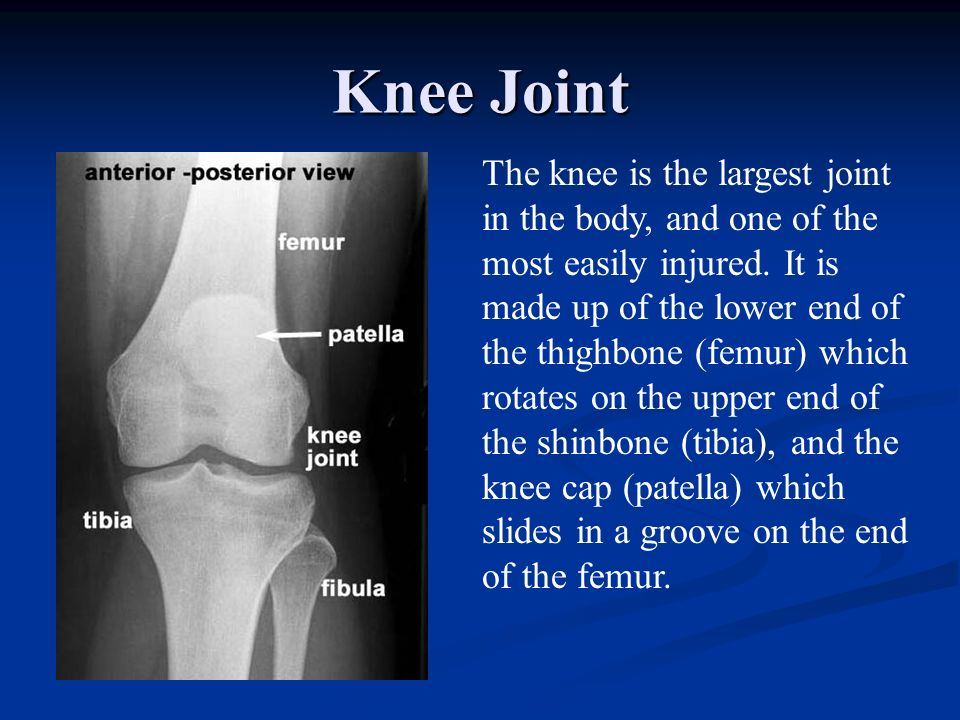 Total Knee Replacement There are many different companies that produce total knee implants.