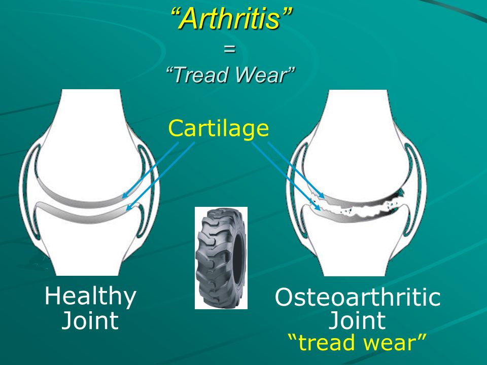 Healthy Joint Osteoarthritic Joint tread wear Cartilage Arthritis = Tread Wear