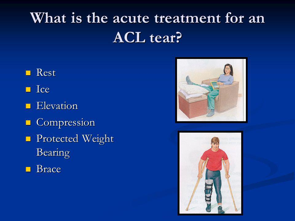 What is the acute treatment for an ACL tear? Rest Rest Ice Ice Elevation Elevation Compression Compression Protected Weight Bearing Protected Weight B