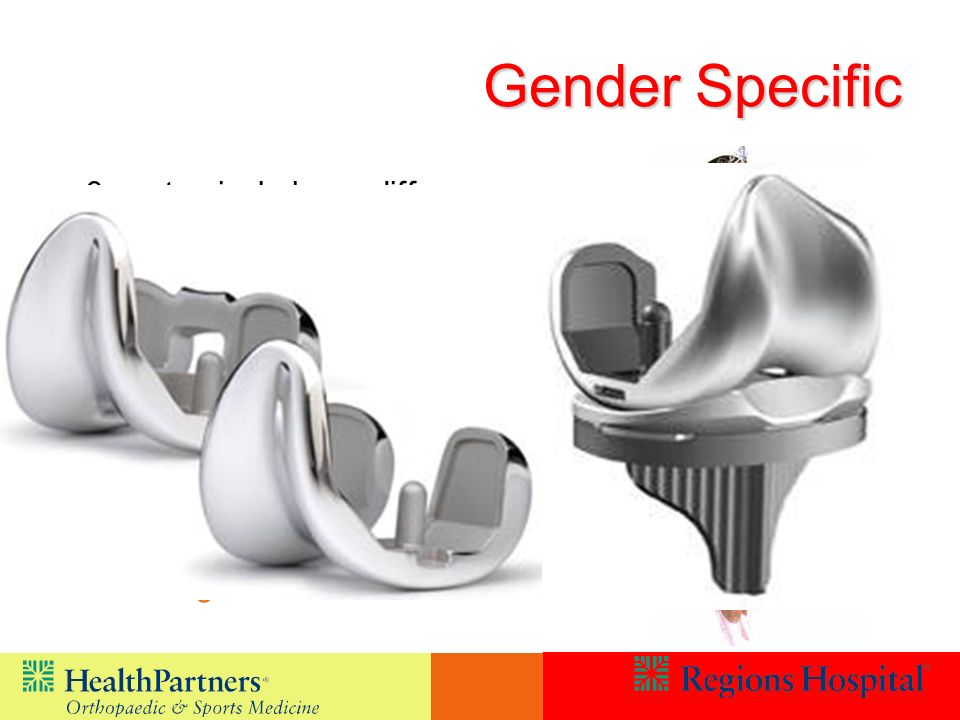 Gender Specific 3 anatomical shape differences –Females are narrower –They have a different angle the knee cap glides through –They have thinner area at the front of the bone Most companies now address this in some way –Shape change –Sizing