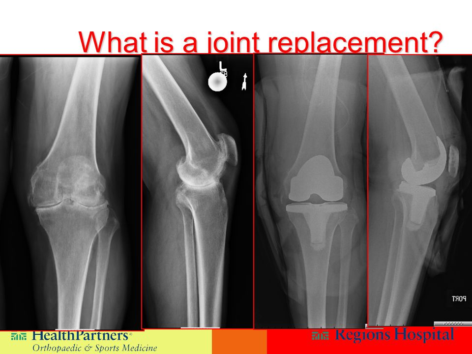 What is a joint replacement?