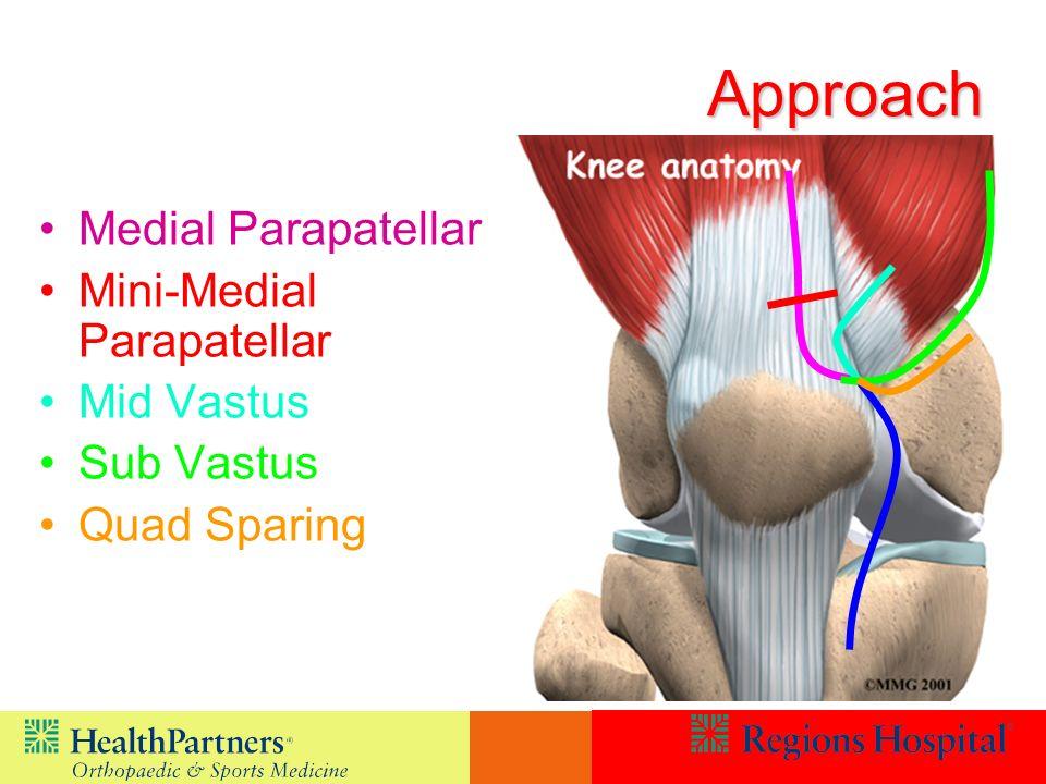 Approach Medial Parapatellar Mini-Medial Parapatellar Mid Vastus Sub Vastus Quad Sparing