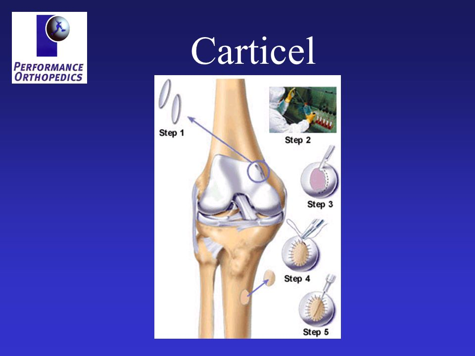 Carticel