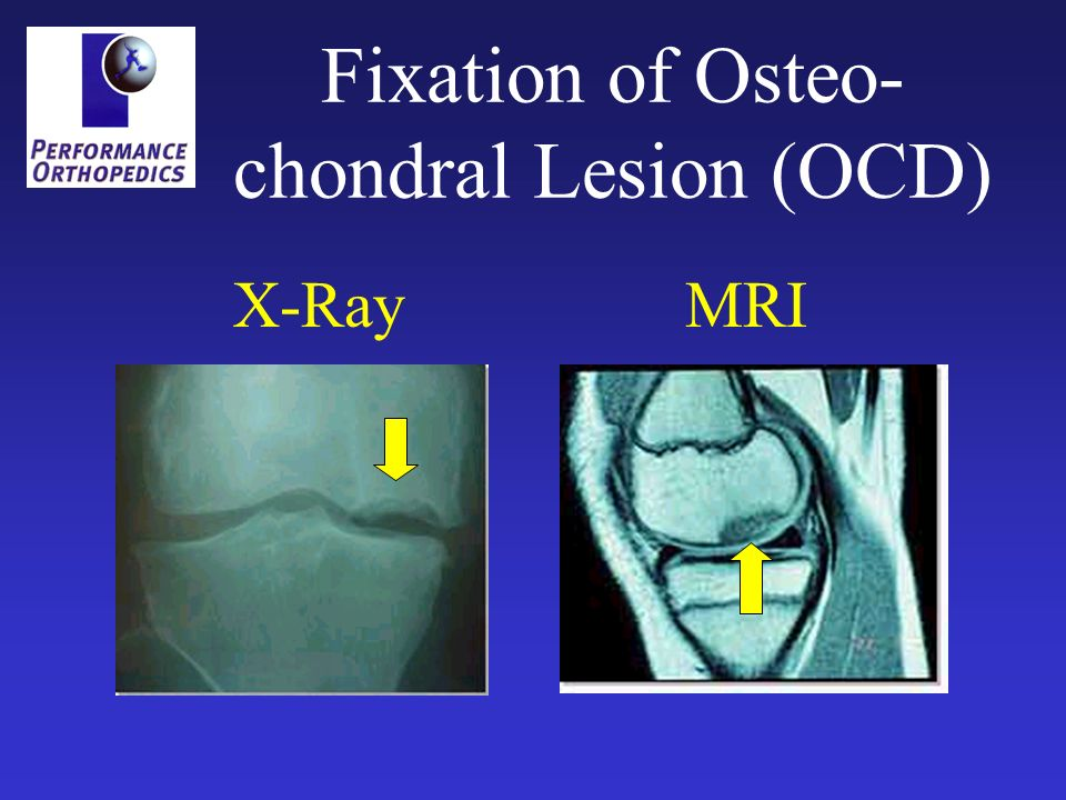 Fixation of Osteo- chondral Lesion (OCD) X-RayMRI