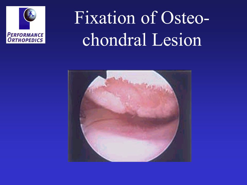 Fixation of Osteo- chondral Lesion
