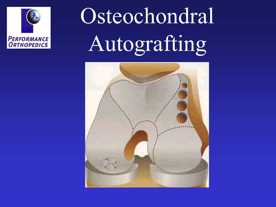 Osteochondral Autografting