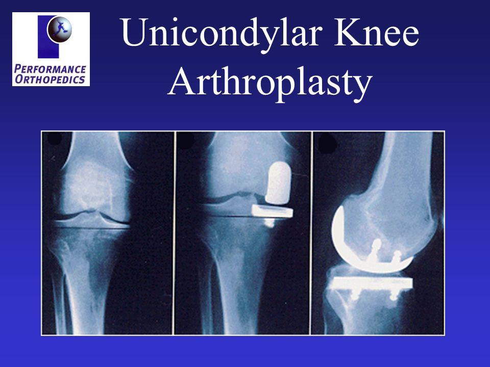 Unicondylar Knee Arthroplasty