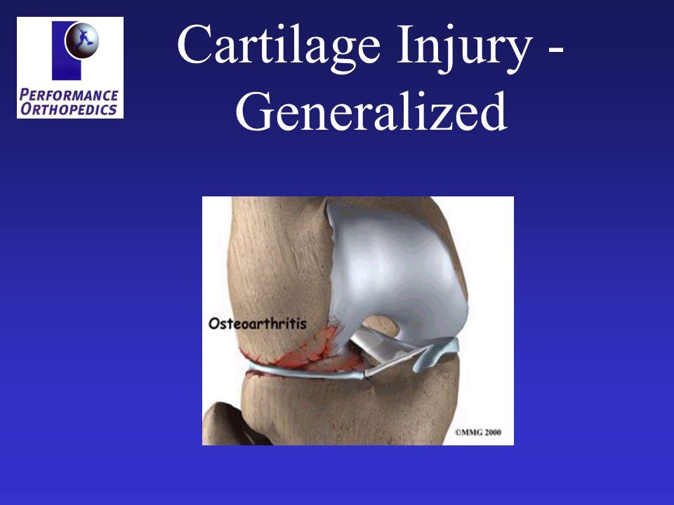 Cartilage Injury - Focal