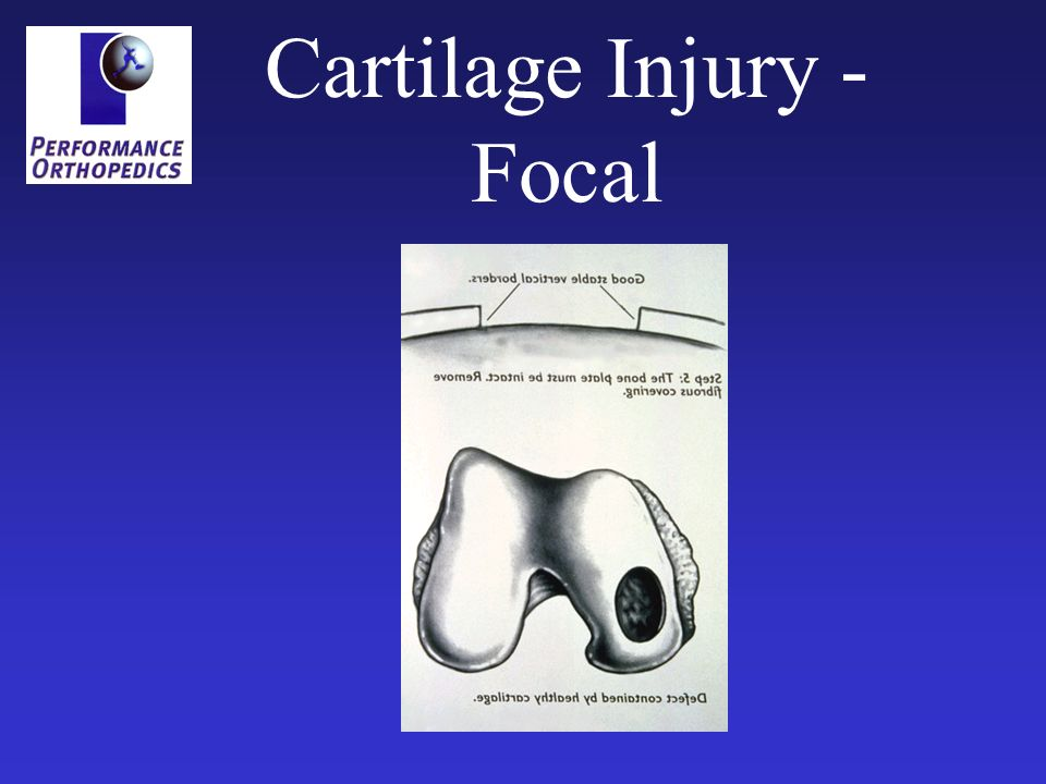 Symptoms of Cartilage Injury Pain Swelling Catching Locking