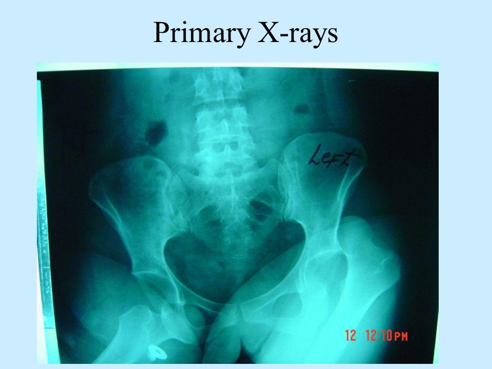 Primary X-rays