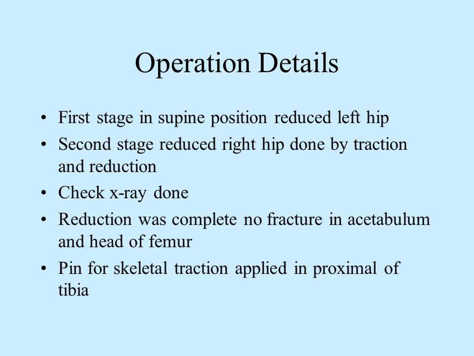 Operation Details First stage in supine position reduced left hip Second stage reduced right hip done by traction and reduction Check x-ray done Reduc