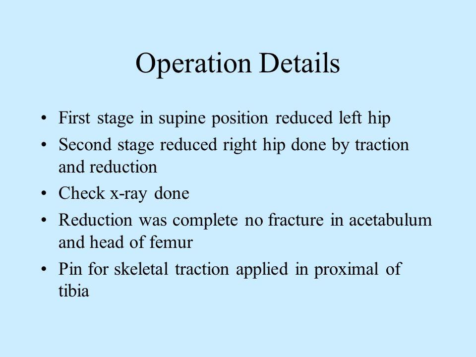Post Operation X-ray