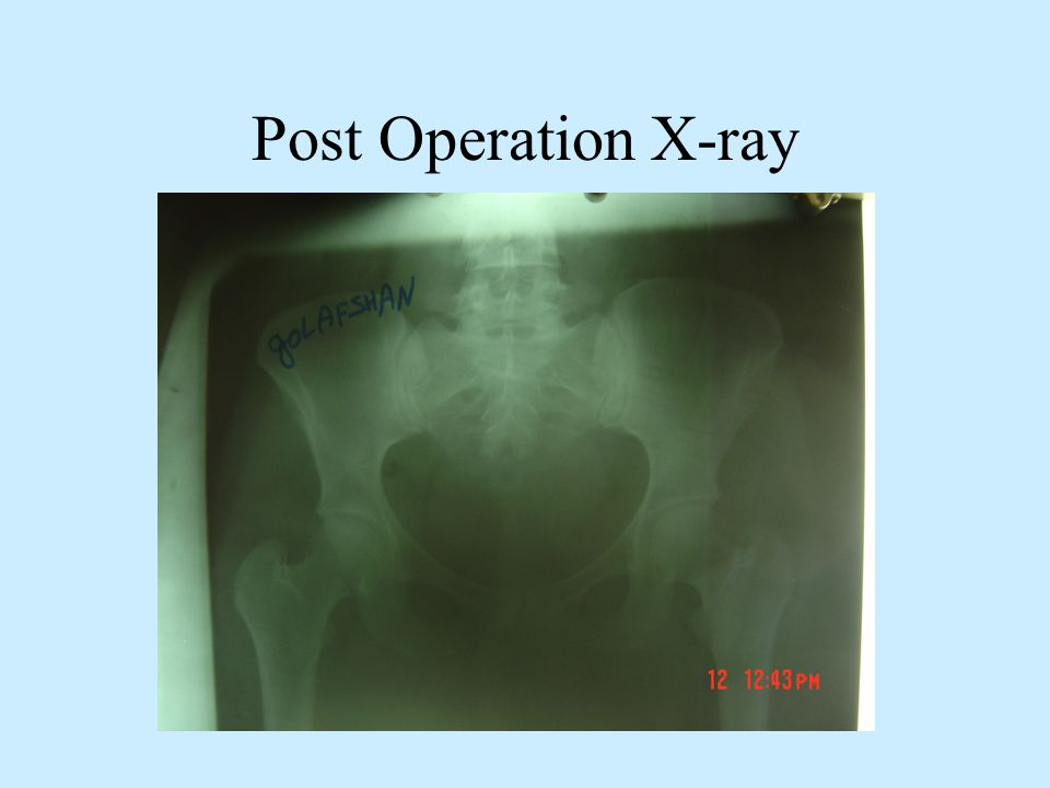 Post Operation X-ray