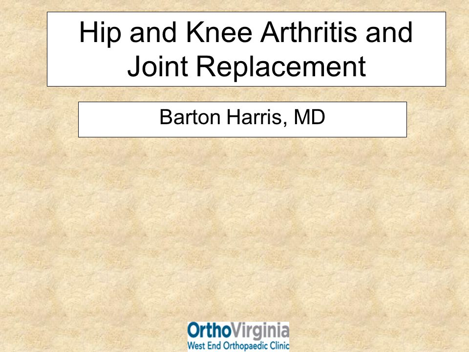 Hip and Knee Arthritis and Joint Replacement Barton Harris, MD