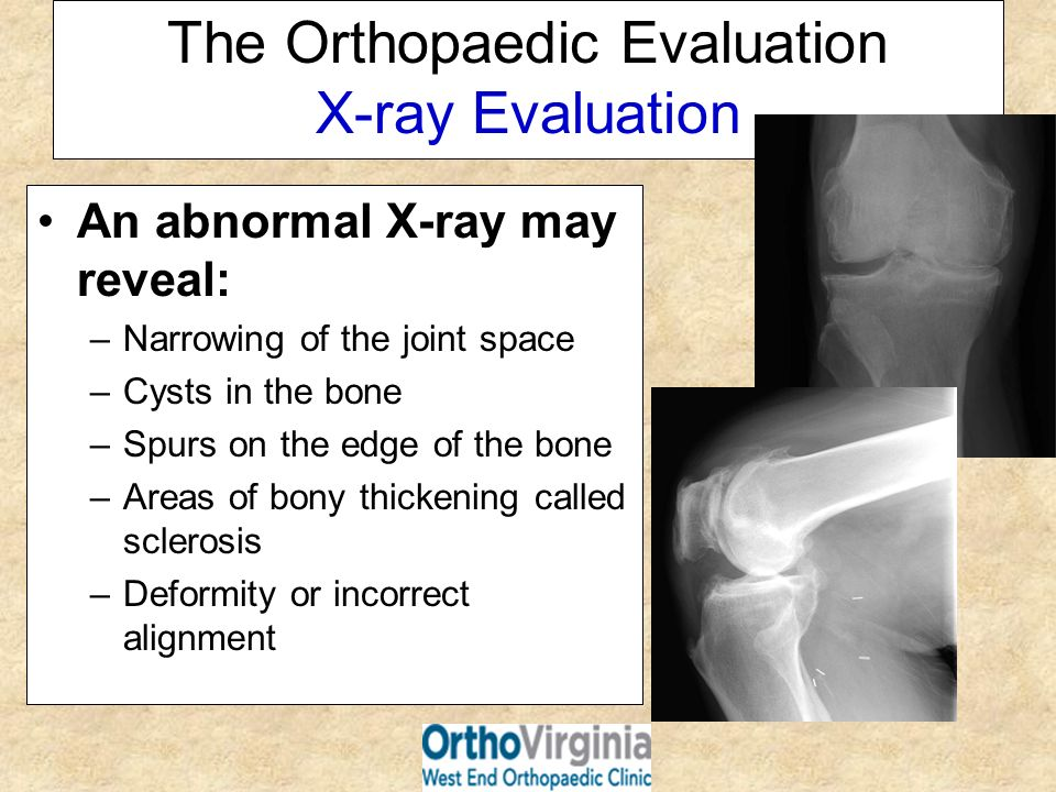 The Orthopaedic Evaluation X-ray Evaluation An abnormal X-ray may reveal: –Narrowing of the joint space –Cysts in the bone –Spurs on the edge of the b