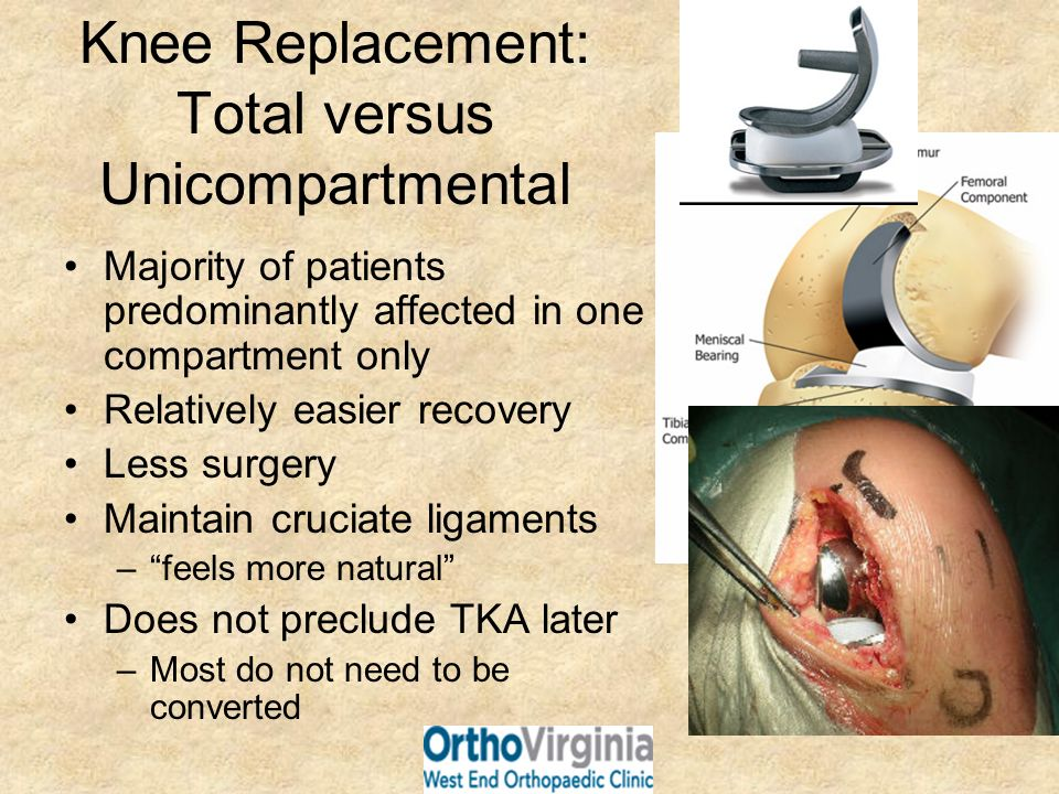 Knee Replacement: Total versus Unicompartmental Majority of patients predominantly affected in one compartment only Relatively easier recovery Less su