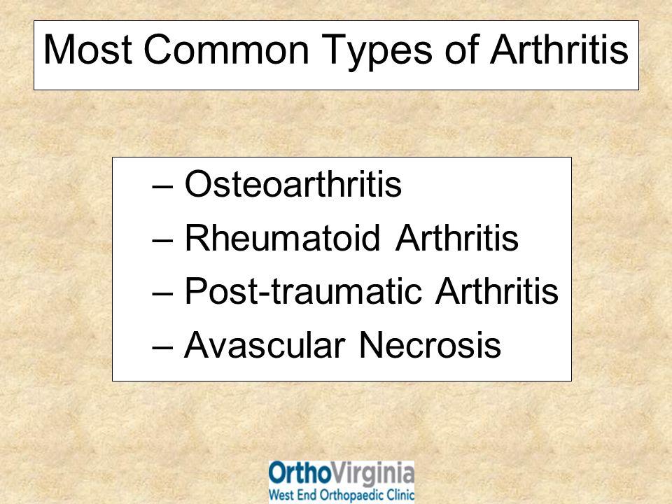 What is Arthroscopy.