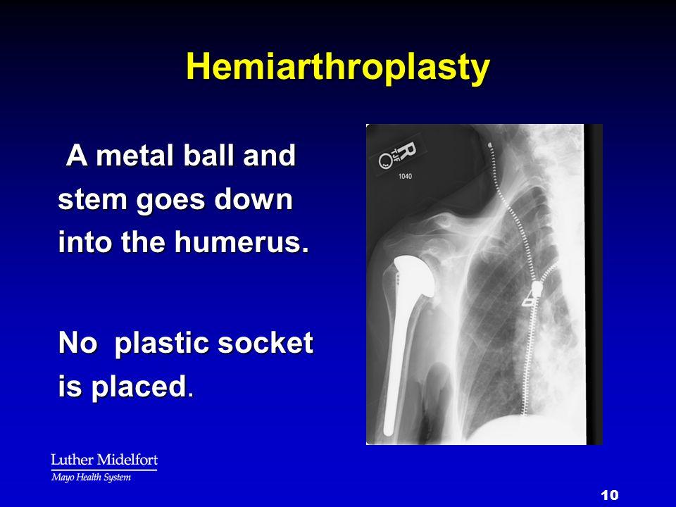 10 Hemiarthroplasty A metal ball and stem goes down into the humerus. A metal ball and stem goes down into the humerus. No plastic socket is placed.