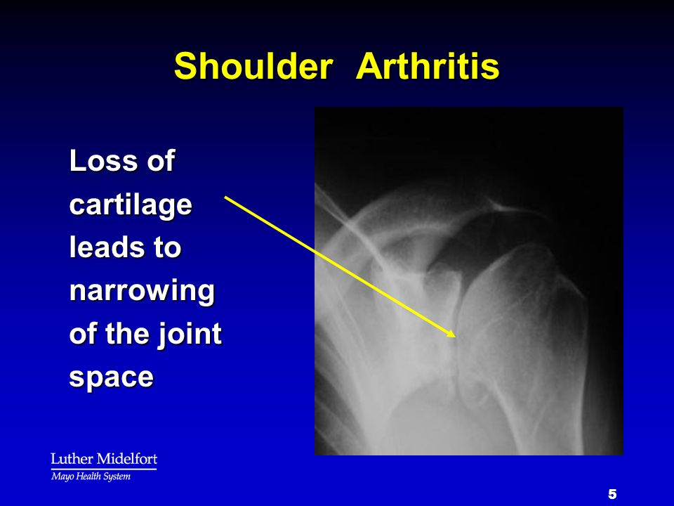 5 Shoulder Arthritis Loss of cartilage leads to narrowing of the joint space