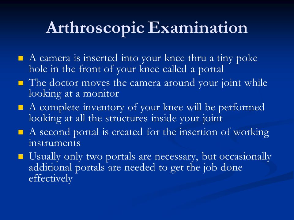 Arthroscopic Examination A camera is inserted into your knee thru a tiny poke hole in the front of your knee called a portal The doctor moves the came