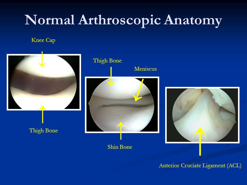 Normal Arthroscopic Anatomy Thigh Bone Anterior Cruciate Ligament (ACL) Knee Cap Shin Bone Meniscus